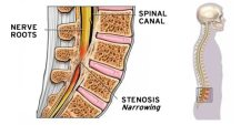 What is Spinal Stenosis and What Causes It?