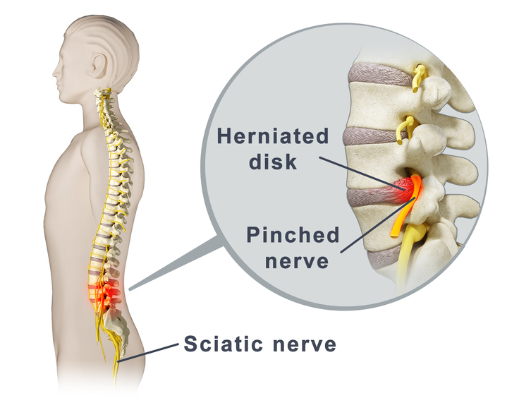 What Is A Pinched Nerve Cause Symptoms Of A Pinched Nerve